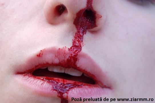 hemoragie-nazala